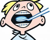 Cartoon of boy with braces with dental mirror in his mouth